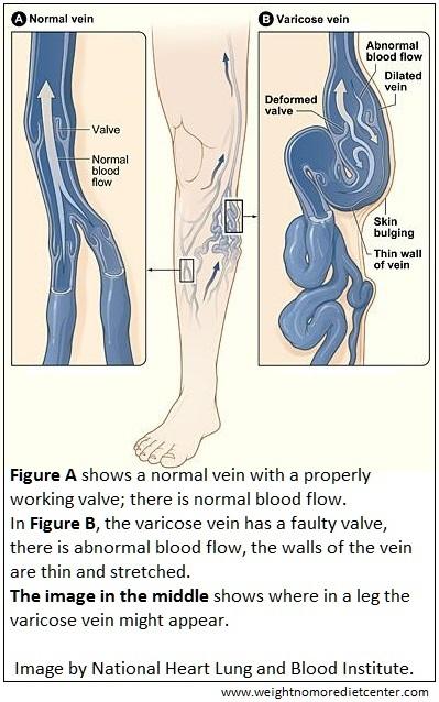 graphic-wnmdc-infographic-varicose-veins