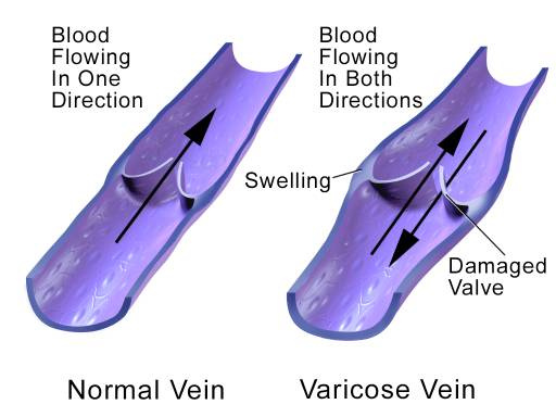 graphic-wnmdc-medical-varicoseveins4-smaller